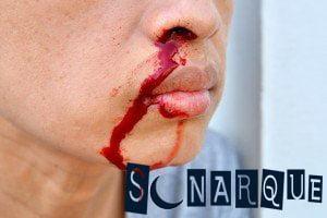 qué significa ver sangre en una persona en tu sueño